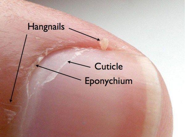 hangnails
